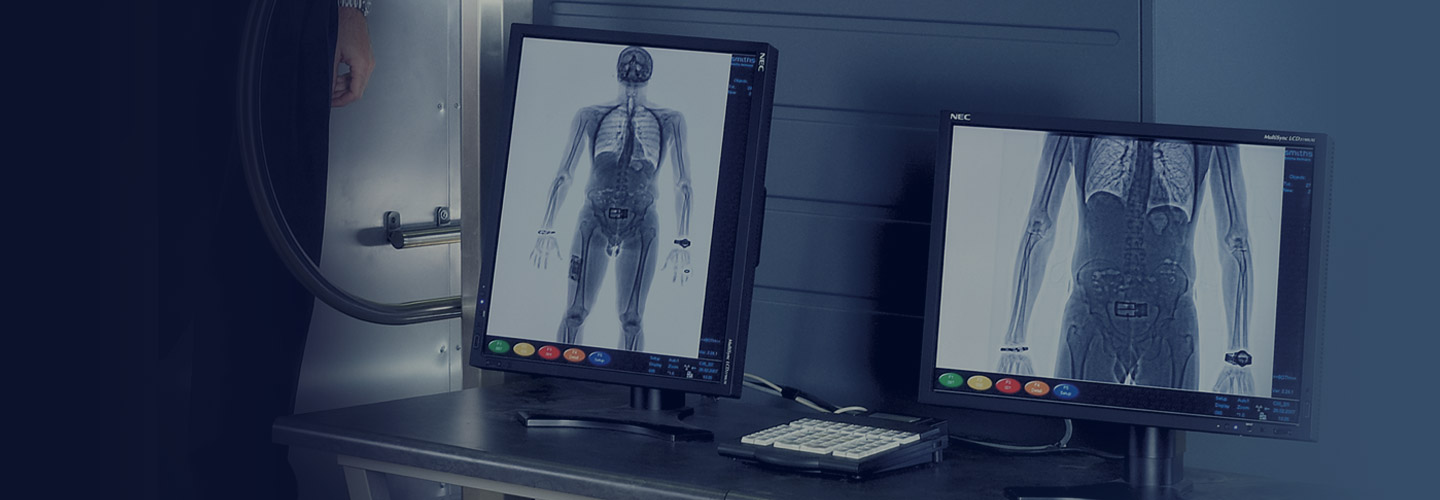 body scans and bottleneck case Body scans and bottlenecks optimizing hospital ct process flows - a midwest hospital purchases new ct scanners which are much faster than the existing technology.